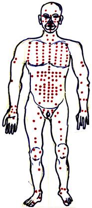 Много голям брой енергийни точки по тялото