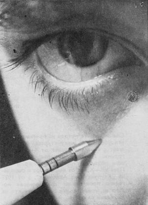 акупунктурна точка под окото