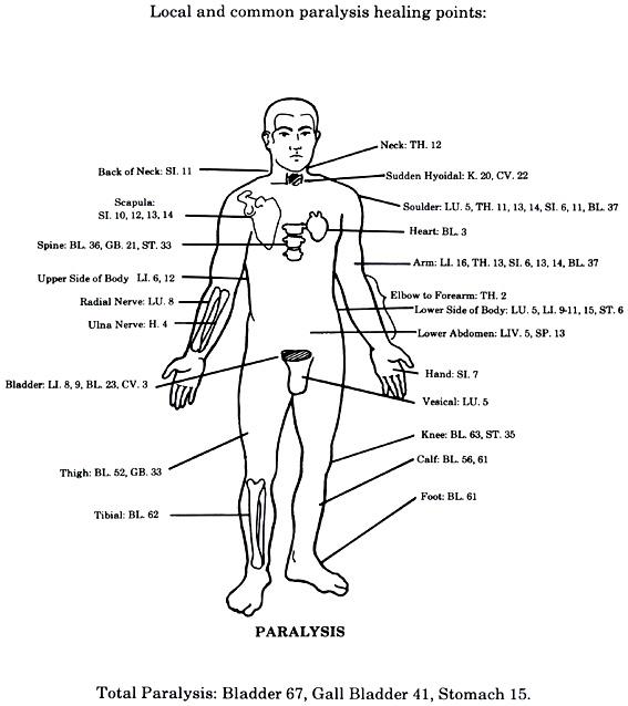 Точки за парализа